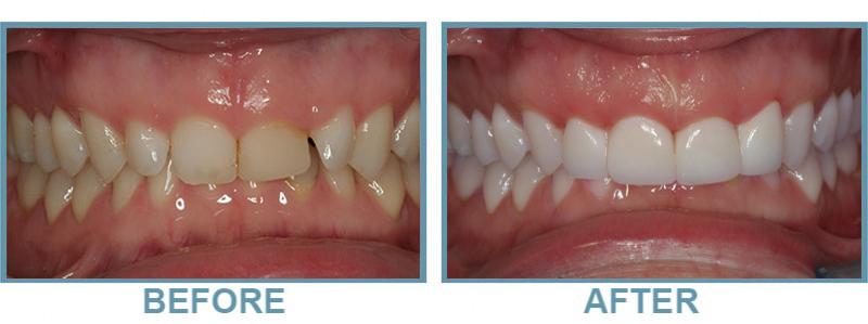 ohana dental before and after